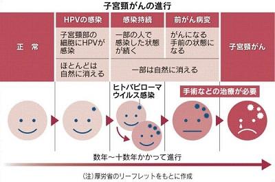 子宮頸がんの進行.jpg